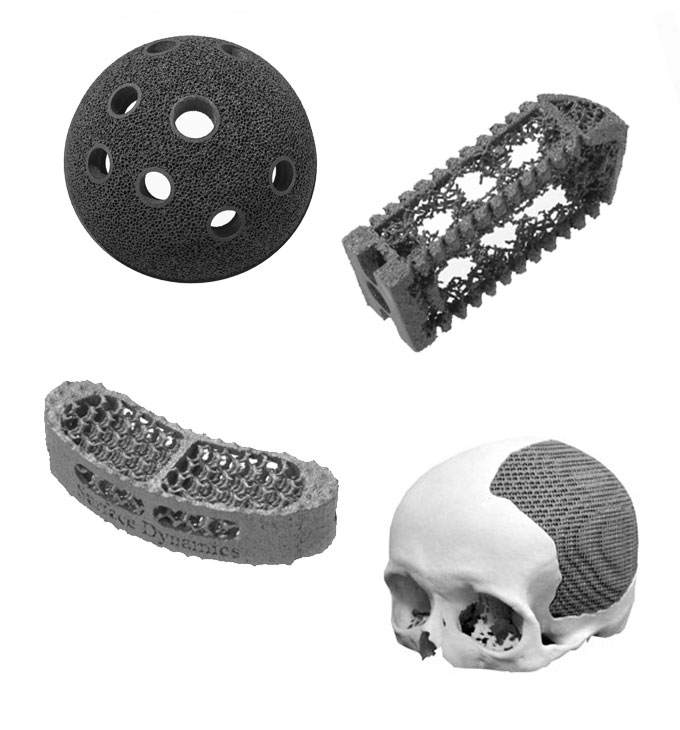 Lincotek Medical - Additive manufacturing examples 02